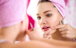 What You Need to Know About Adult Acne