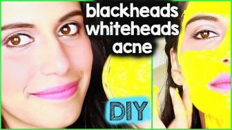 How to get rid of Blackheads, Whiteheads zits & Acne FAST {DIY} Skin Care Treatment at home