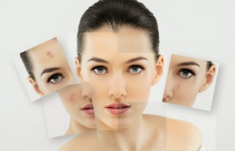 Three Terrific Tips In Treating Acne Scars